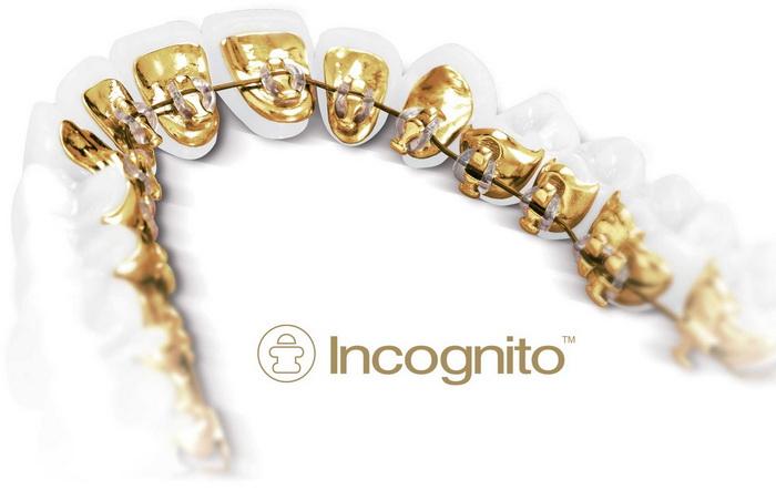 Брекеты Incognito