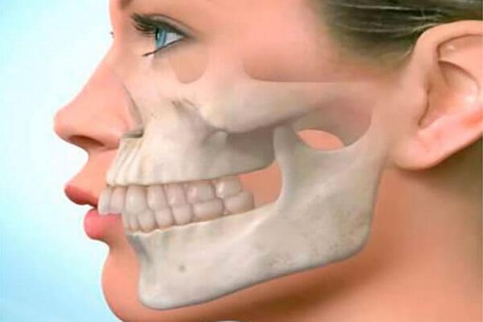 Дистальное смыкание челюстей