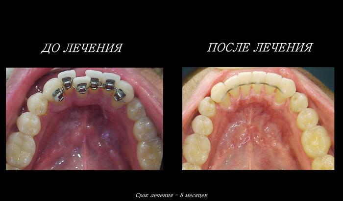 До и после лечения лингвальными брекет-системы