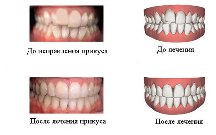 До и после лечения неправильного прикуса