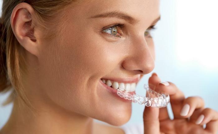 Элайнеры для выпрямления зубов