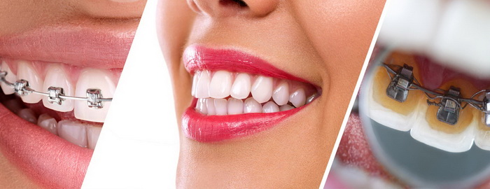 Эмаль на зубах с брекетами