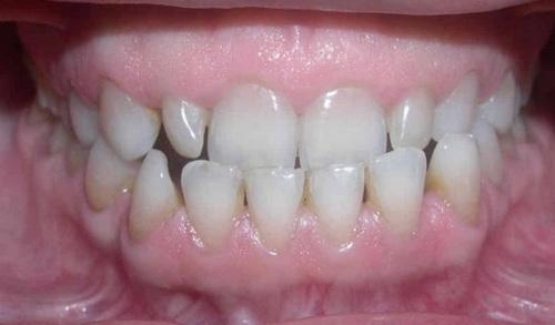 Гравный признак мезиального прикуса - выдвинутая вперед нижняя челюсть