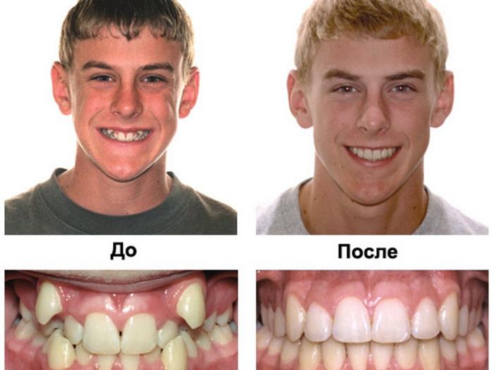 Исправление кривых зубов брекетами ДО и ПОСЛЕ
