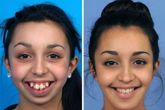 Исправленный прикус зубов, выступающих сверху. В начале лечения и после