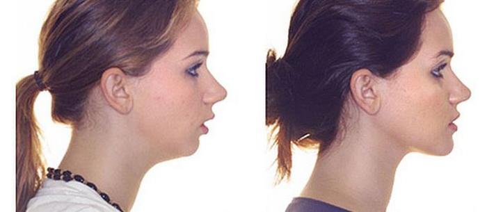 Изменение пропорций лица при глубоком дистальном прикусе