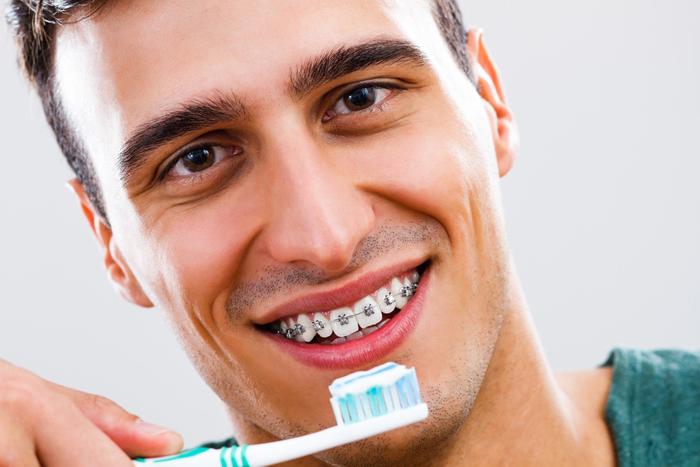 Как чистить зубы с установленными брекетами