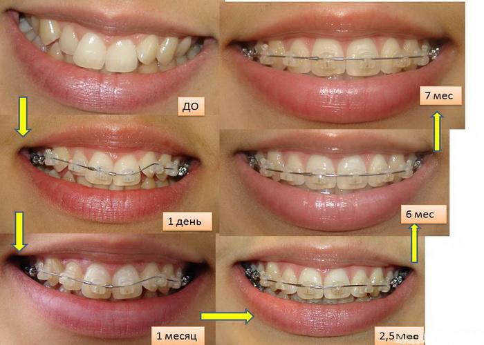 Как исправляются зубы с брекетами