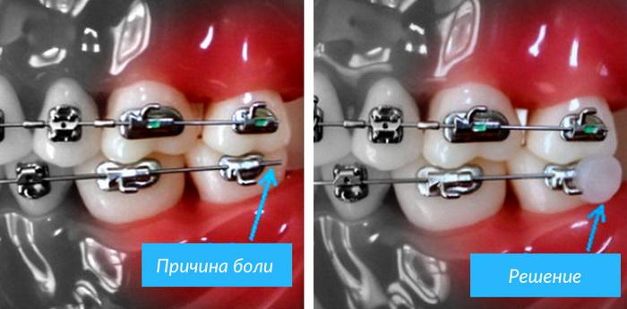 Как избавиться от боли при ношении брекетов