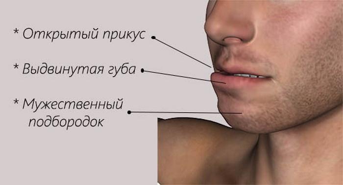 Как распознать мезиальный прикус зубов