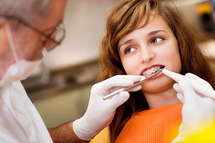 Как устанавливаются брекет-системы на зубы. Прямая и непрямая фиксация