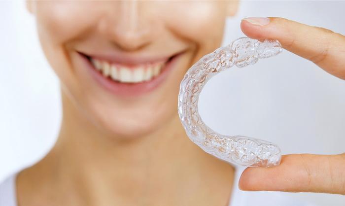 Каппы - элайнеры для исправления неправильного прикуса зубов
