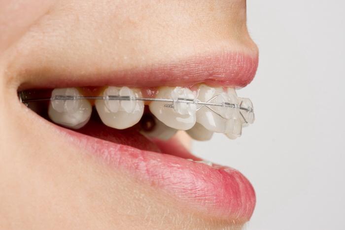 Коррекция зубов верхней челюсти