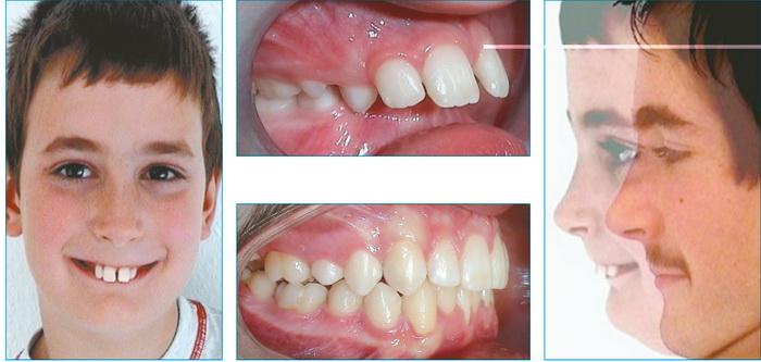 Лечение дистального прикуса зубов. Фото до и после