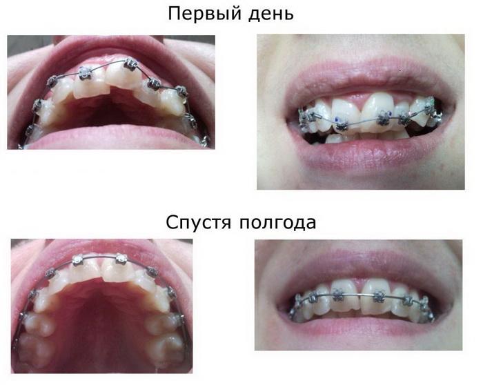 Лечение искривления зубов самолигирующими брекетами. До и после