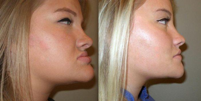 На фото - до начала исправления мезиального прикуса (слева) и после (справа)
