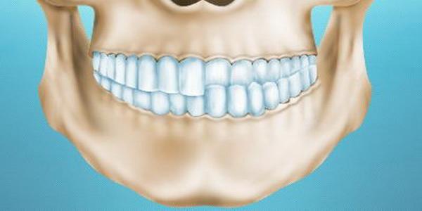 Перекрестный прикус зубов