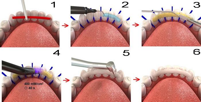 Последовательность установки несъемного зубного ретейнера