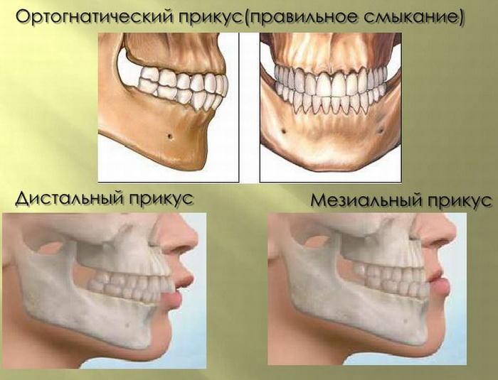 Правильное положение зубов человека