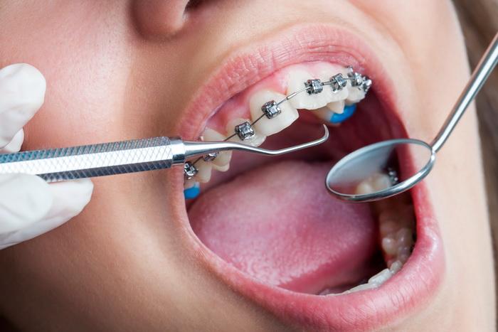 Причины появления кривизны зубов после лечения брекетами