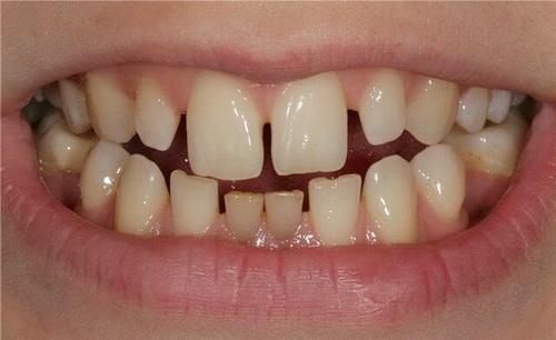 Пример образовавшихся щелей между зубами