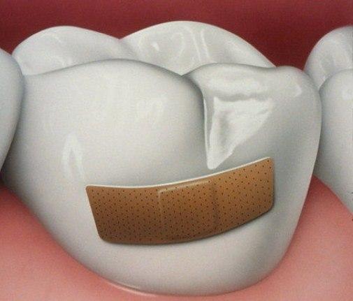 Проблема №4. Нарушение целостности зубной эмали