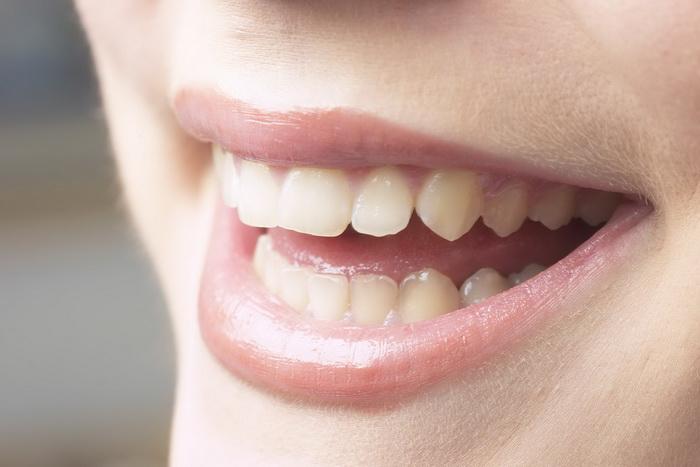 Профилактика искривления зубов