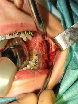 Разрез на левой челюсти пациента - видна лицевая кость
