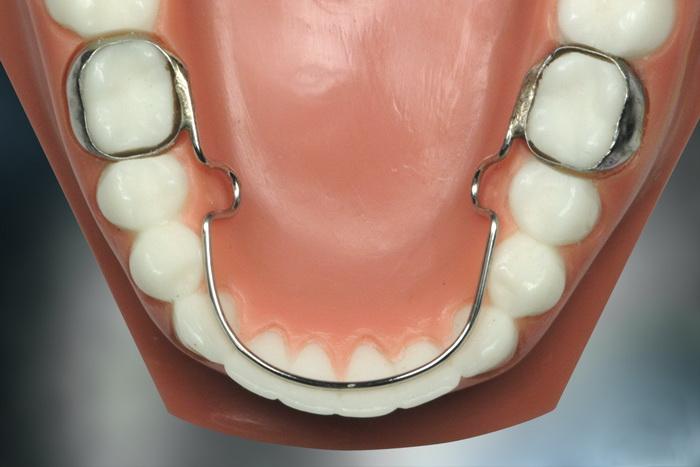 Ретейнер - дуга на зубы