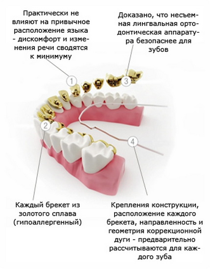 Специфика конструкции брекет-систем Инкогнито