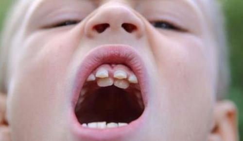 Так выглядит дистопия зубов. В данном случае резцов - они располагаются не на своем месте