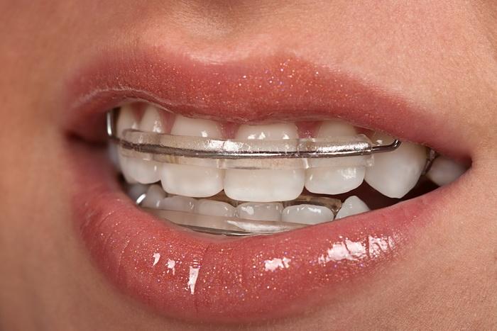 Так выглядит пациент с установленной зубной дугой