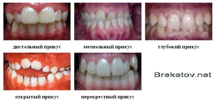 Типы неправильного прикуса зубов