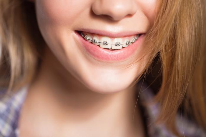 Удаление зубов под брекеты. Четверки, восьмерки, зубы мудрости