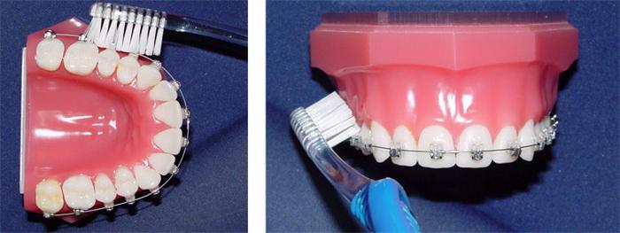 Ухаживание за брекет-системой с использованием зубной щетки