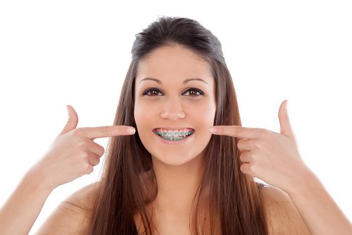 Виды брекетов. Какие бывают зубные системы