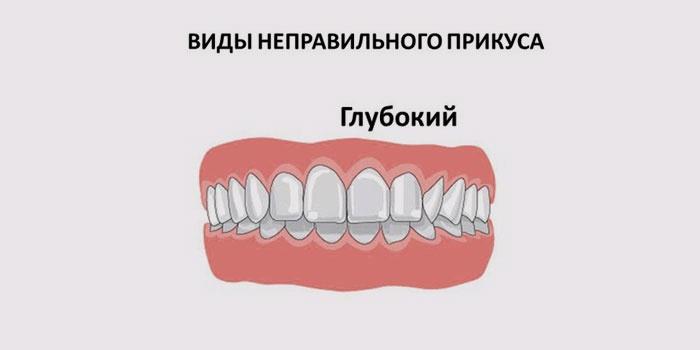 Виды глубокого зубного прикуса