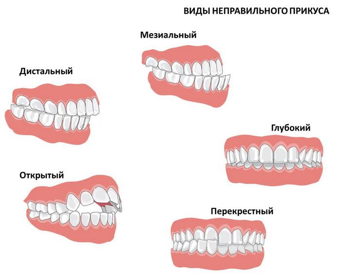 Виды неправиного зубного прикуса