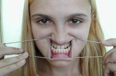 Исправляем искривление зубов. Причины недуга и способы коррекции