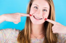 Как брекеты снимаются с зубов?