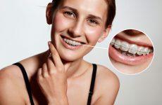 Лечение прикуса брекетами. Описание процесса по месяцам