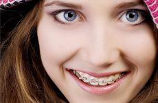 Портят ли брекеты эмаль зубов?