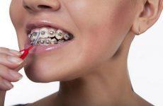Ершики для чистки зубов с брекетами. Виды, применение