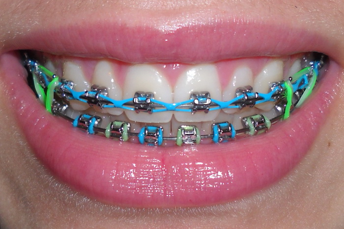 color braces