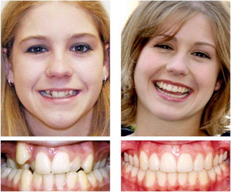 Как сделать брекеты для зубов