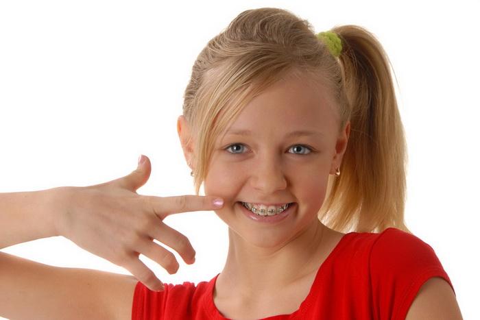 Детские брекеты. Особенности выбора и установки систем ребенку