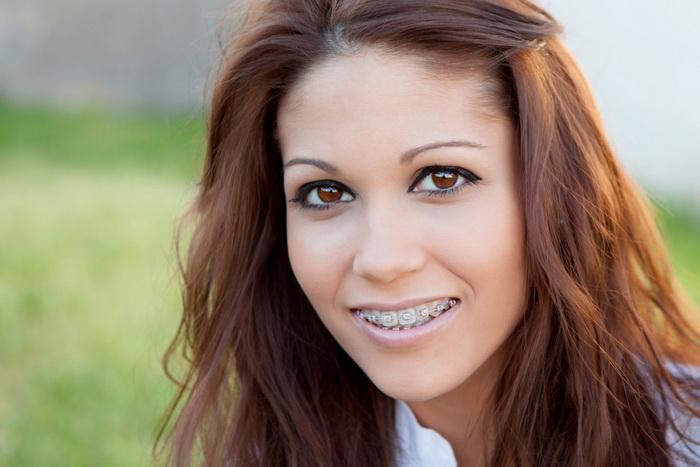 Изменение лица после лечения брекетами. 8 фото ДО и ПОСЛЕ